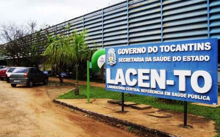 Laboratório Central de Saúde Pública do Tocantins (Lacen)