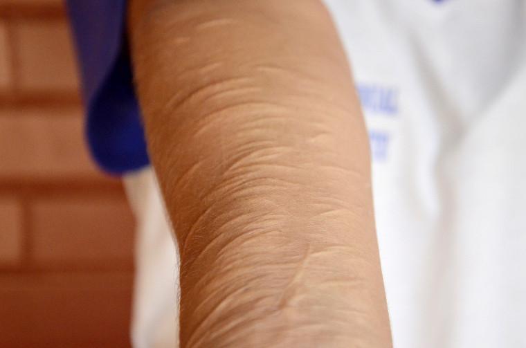 Lesões no braço