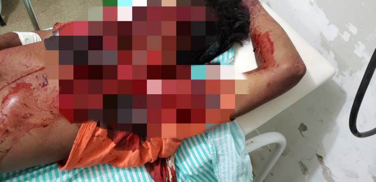 Vítima ficou gravemente ferida