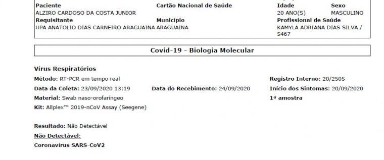 Resultado não detectável para o coronavírus