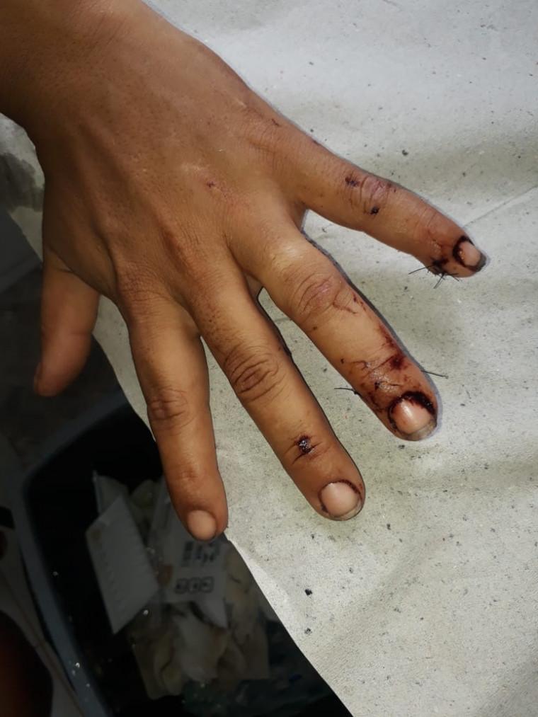 Vítima por pouco não teve os dedos decepados