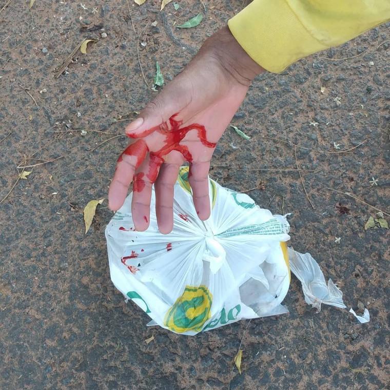 Douglas com a mão cortada depois de se ferir com vidro quebrado