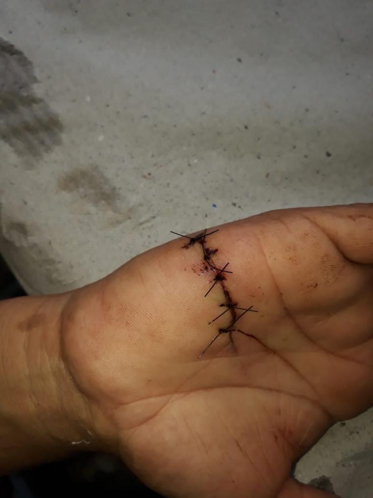 Mão da vítima