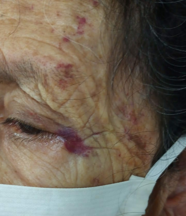 Idosa ficou com hematomas no rosto