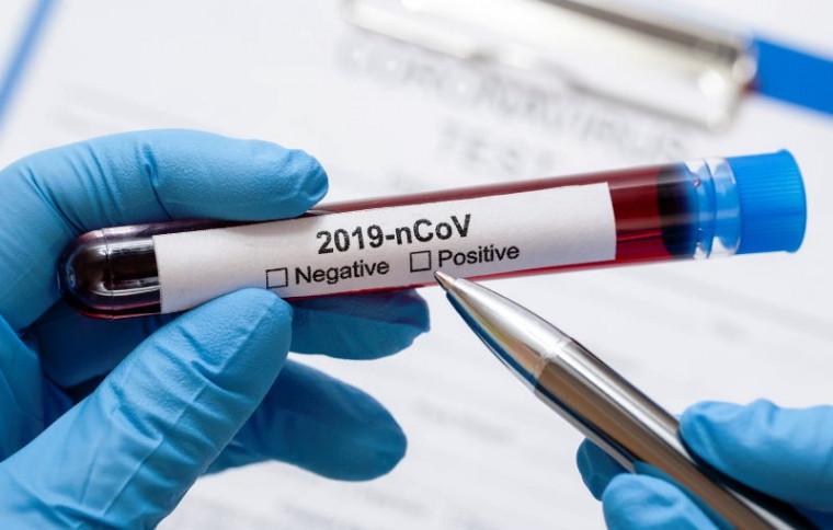 OMS declarou pandemia de Covid-19