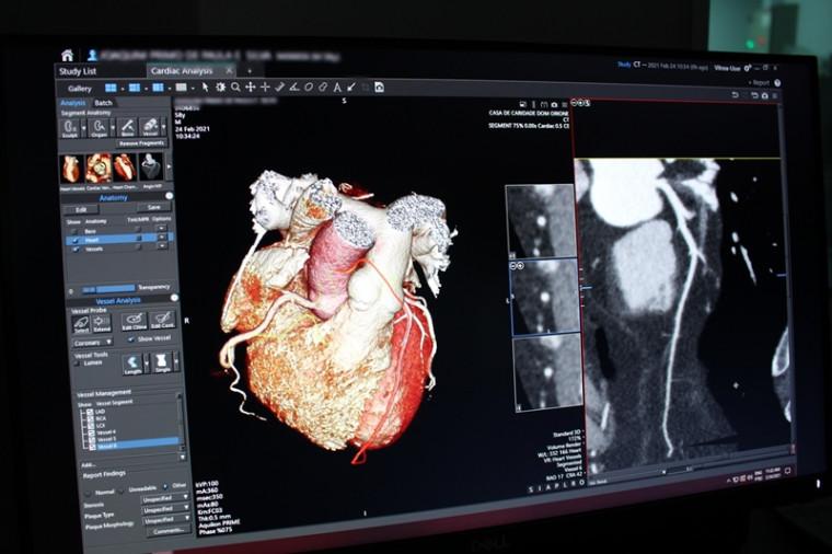 Novo exame possibilita a visualização tridimensional do coração, das suas estruturas e das artérias coronarianas.